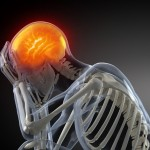 Brain Injuries - Head Trauma